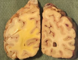 Normal brain Vs Cerebral Edema
