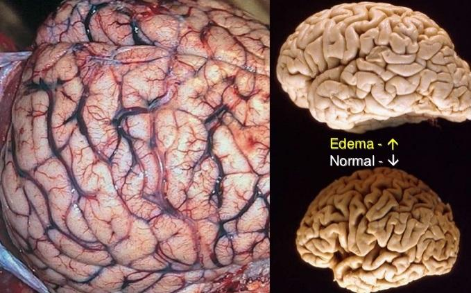 Normal Brain vs. Cerebral Edema
