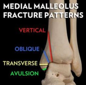 Medial Malleolus Fracture Types