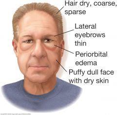 myxedema pictures facial edema