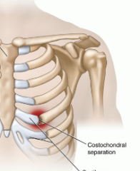 Dislocated Rib