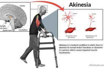 Akinesia picture 2