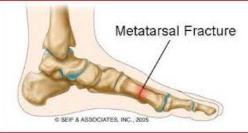Metatarsal Bone Fracture on foot