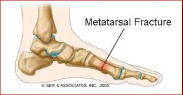 Metatarsal Bone Fracture of foot