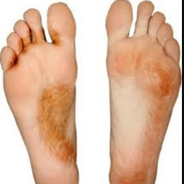 Vesicular Athlete's Foot picture 3