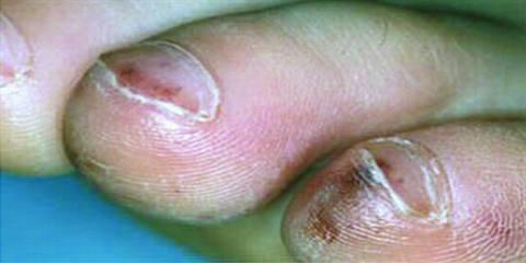 Splinter Hemorrhages on nail picture 2