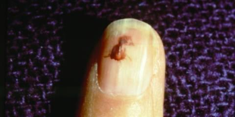 Splinter Hemorrhages on nail picture 3