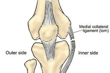 McI Tear of joint
