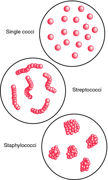 Occurrence of pathogenic coccus