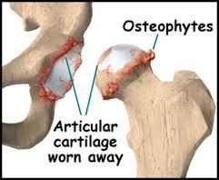 Marginal osteophytes