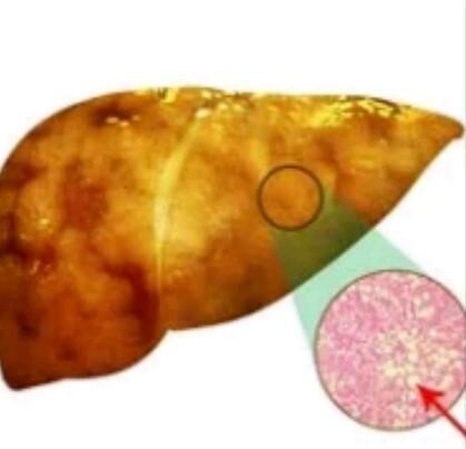 Tyrosinemia (liver)