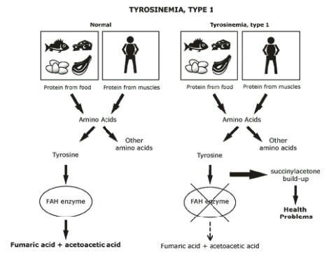 Tyrosinemia Type I