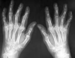 MRI of arms