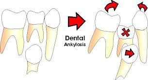 dental Ankylosis