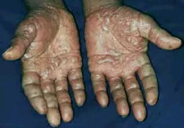 Pompholyx on hands