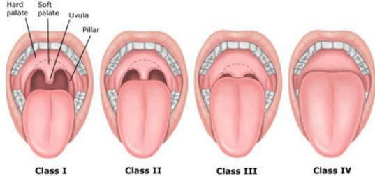 Swollen uvula classes