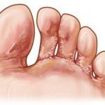 Vesicular Athlete's Foot