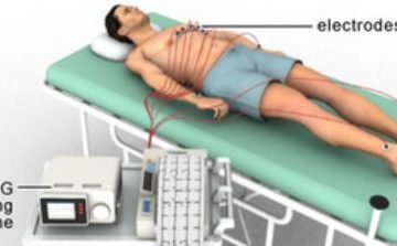 electrocardiogram procedure
