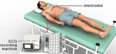 electrocardiogram procedure